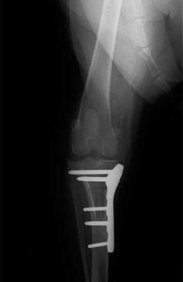 前十字靭帯断裂・25kg・ゴールデンレトリバー雑種